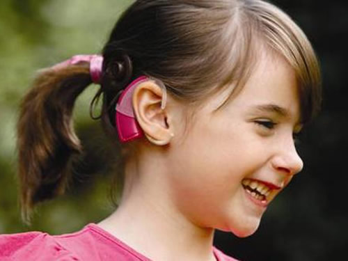About cochlear implants
